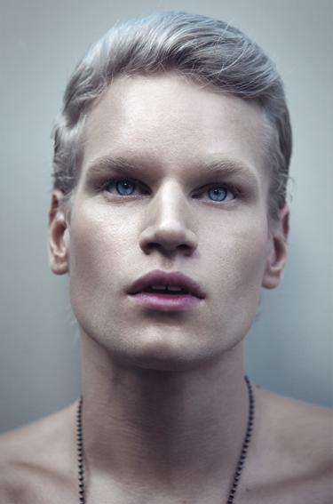 albino-3.png